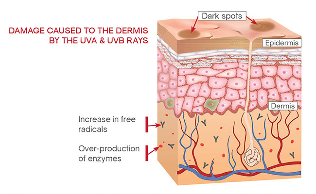 Damage caused by the UVA-UVB to the Dermis